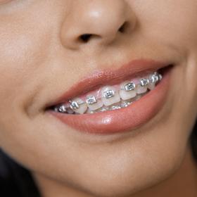 orthodontics-ellisville-mo